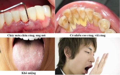 Nguyên nhân trực tiếp gây hôi miệng sau khi nhổ răng