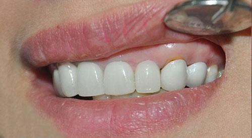 Nhận biết răng sứ bị hở