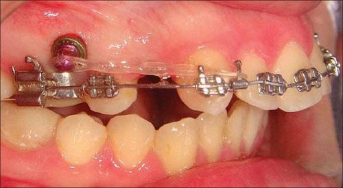 Nhổ răng để tạo khoảng trống giúp quá trình dịch chuyển của răng thuận lợi