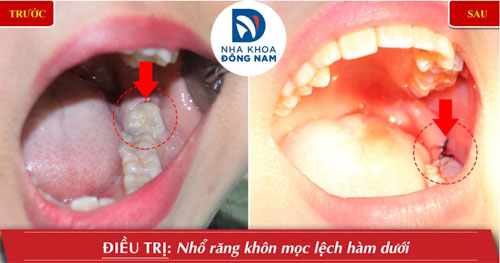 Nhổ răng khôn mọc ngầm