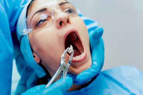 Nhổ răng khôn trị hôi miệng dứt điểm