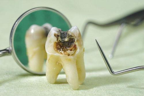 Nhổ răng sâu nặng