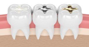 Những vật liệu trám răng được dùng phổ biến
