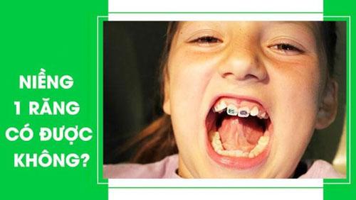 Niềng răng 1 cái có được không?