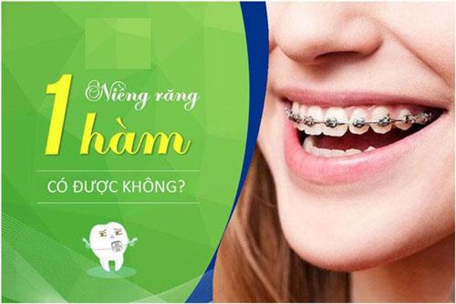 Niềng răng 1 hàm có được không?