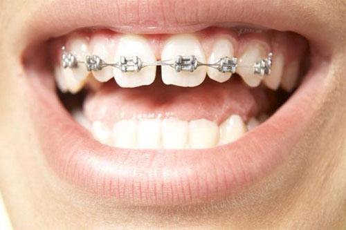Niềng răng 1 hàm có hiệu quả không cũng tùy vào từng trường hợp cụ thể