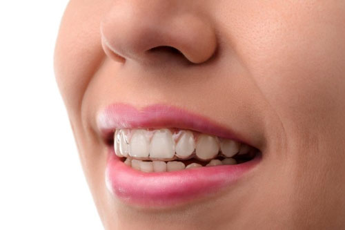 Niềng răng 3D Clear đảm bảo thẩm mỹ cao