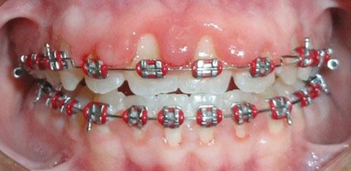 Niềng răng bị tụt lợi có thể do lực siết của mắc cài không phù hợp