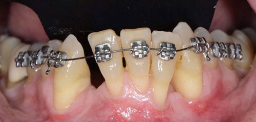 Niềng răng bị tụt lợi khiến nhiều bệnh nhân lo lắng