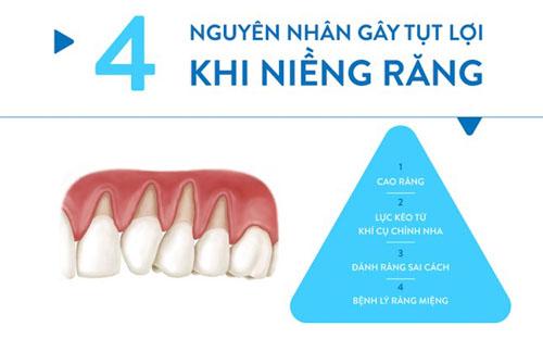 Niềng răng bị tụt lợi nguyên nhân do đâu?