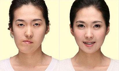 Niềng răng chỉnh nha khắc phục mặt lệch