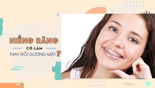 Niềng răng có làm thay đổi khuôn mặt? Và thay đổi như thế nào?