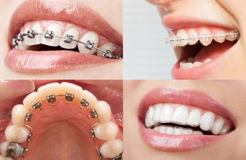 Niềng răng cửa bằng phương pháp nào hiệu quả?