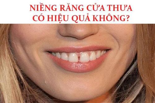 Niềng răng cửa bị thưa có hiệu quả không?