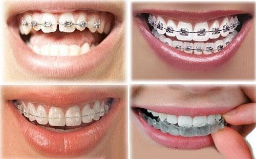 Niềng răng cửa thưa với đa dạng các loại mắc cài