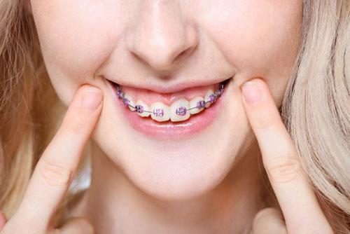 Niềng răng hô không quá đau đớn như nhiều người lo lắng