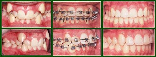 Niềng răng khấp khểnh giúp nụ cười thẩm mỹ hơn