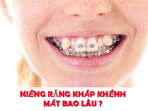 Niềng răng khấp khểnh mất bao lâu mới đạt hiệu quả?