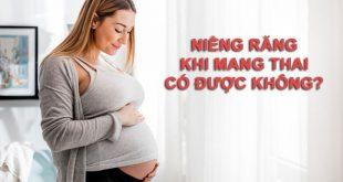 Niềng răng khi mang thai có được không? ảnh hưởng gì không?