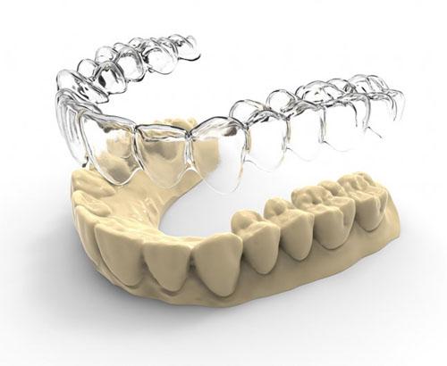 Niềng răng không mắc cài đòi hỏi công nghệ chế tác hiện đại