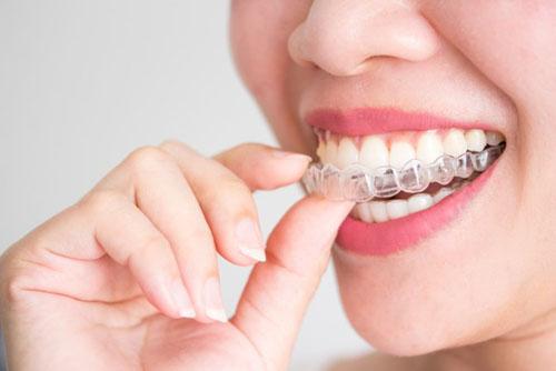 Niềng răng không mắc cài là phương pháp chỉnh nha hiện đại nhất