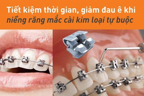 Niềng răng mắc cài kim loại tự buộc với nhiều ưu điểm
