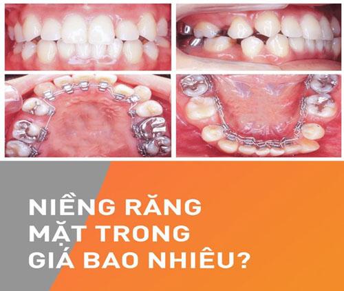 Niềng răng mắc cài mặt trong giá bao nhiêu tiền?