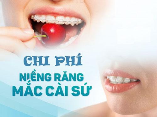 Niềng răng mắc cài sứ bao nhiêu tiền?