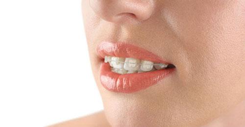 Niềng răng mắc cài sứ được nhiều bệnh nhân tin chọn