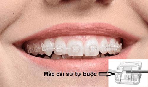 Niềng răng mắc cài sứ tự buộc giúp rút ngắn thời gian điều trị