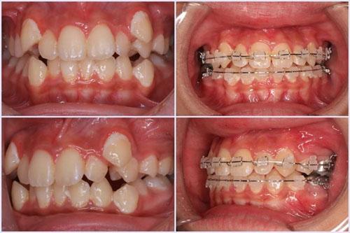 Niềng răng mắc cài sứ vẫn đảm bảo hiệu quả tối ưu