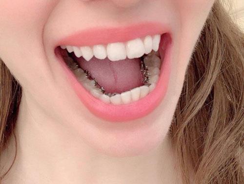 Niềng răng mặt trong giúp giữ thẩm mỹ cao