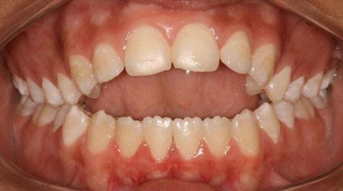 Niềng răng sai khớp cắn để cải thiện thẩm mỹ và ăn nhai tốt hơn