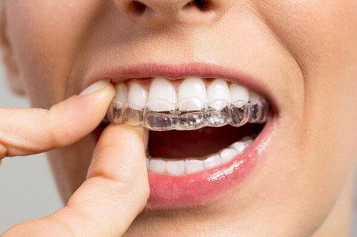 Niềng răng tháo lắp đang ngày càng được ưa chuộng