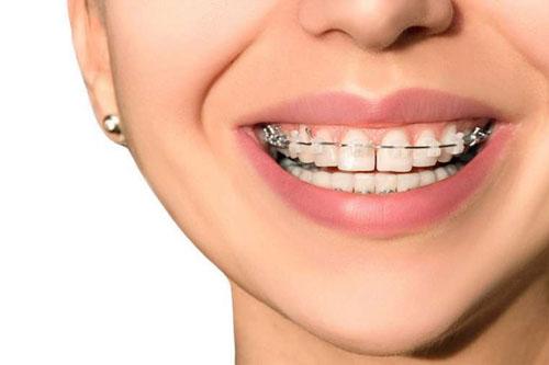 Niềng răng thưa ở cả 2 hàm để đạt được kết quả tốt như mong đợi