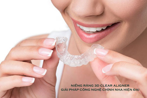 Niềng răng trong suốt 3D Clear