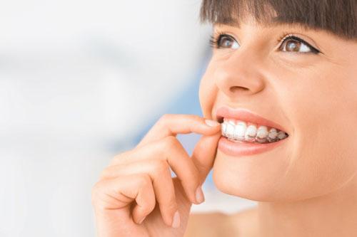 Niềng răng trong suốt giữ thẩm mỹ cao trong suốt quá trình chỉnh nha