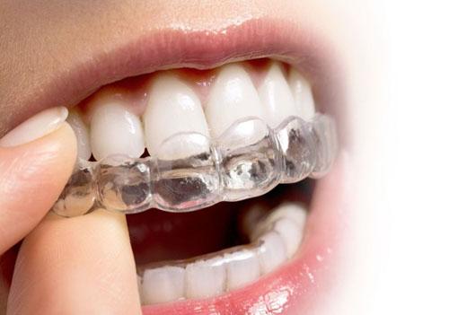 Niềng răng trong suốt là giải pháp chỉnh nha hiện đại nhất
