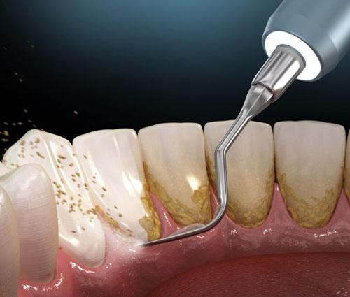 Niềng răng tụt lợi do mảng bám cao răng có thể cạo vôi răng để khắc phục