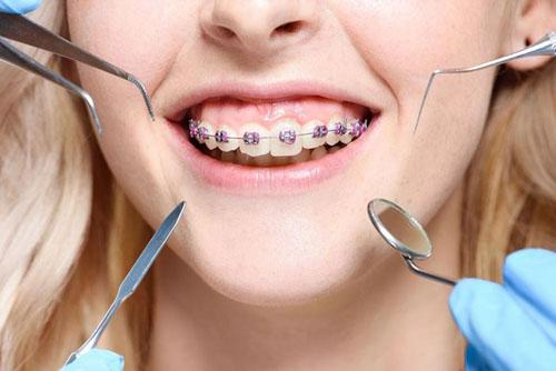 Phương pháp niềng răng không gây đau quá nhiều như mọi người nghĩ