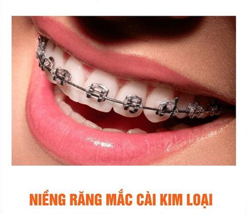 Phương pháp niềng răng mắc cài kim loại được áp dụng rất phổ biến