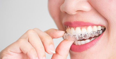 Phương pháp niềng răng trong suốt đang được nhiều người lựa chọn