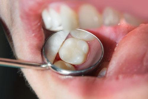 Phương pháp, vật liệu trám răng ảnh hưởng phần lớn chi phí trám