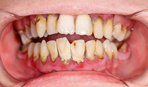 Răng cửa bị lung lay có thể do viêm nha chu gây nên
