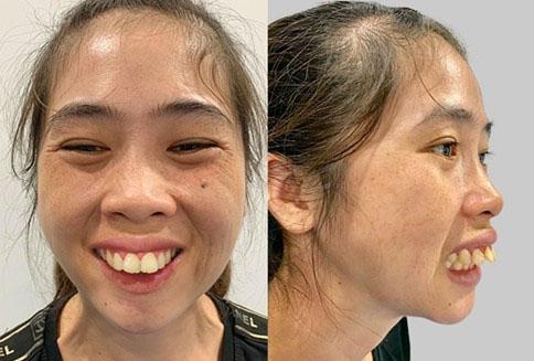 Răng hô ảnh hưởng nhiều đến thẩm mỹ của gương mặt