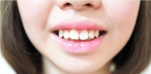 Răng hô do răng dễ cân chỉnh bọc răng sứ