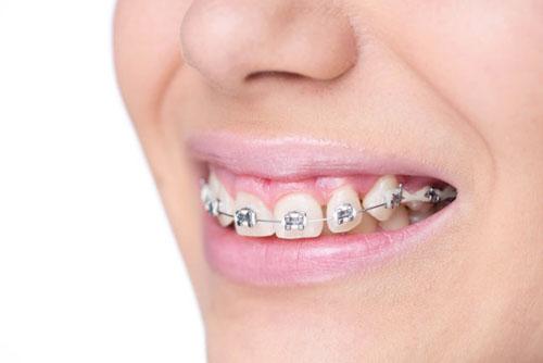 Răng hô nên niềng răng để cải thiện thẩm mỹ