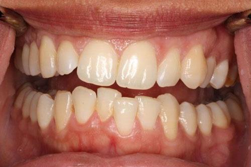 Răng khấp khểnh nhẹ khi niềng cũng không cần nhổ răng