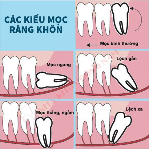 Răng khôn mọc sai lệch sẽ khiến bệnh nhân chịu nhiều cơn đau nhức