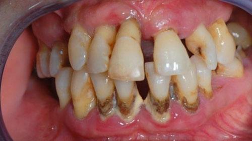 Răng mắc bệnh nha chu nặng không thể niềng răng hiệu quả được